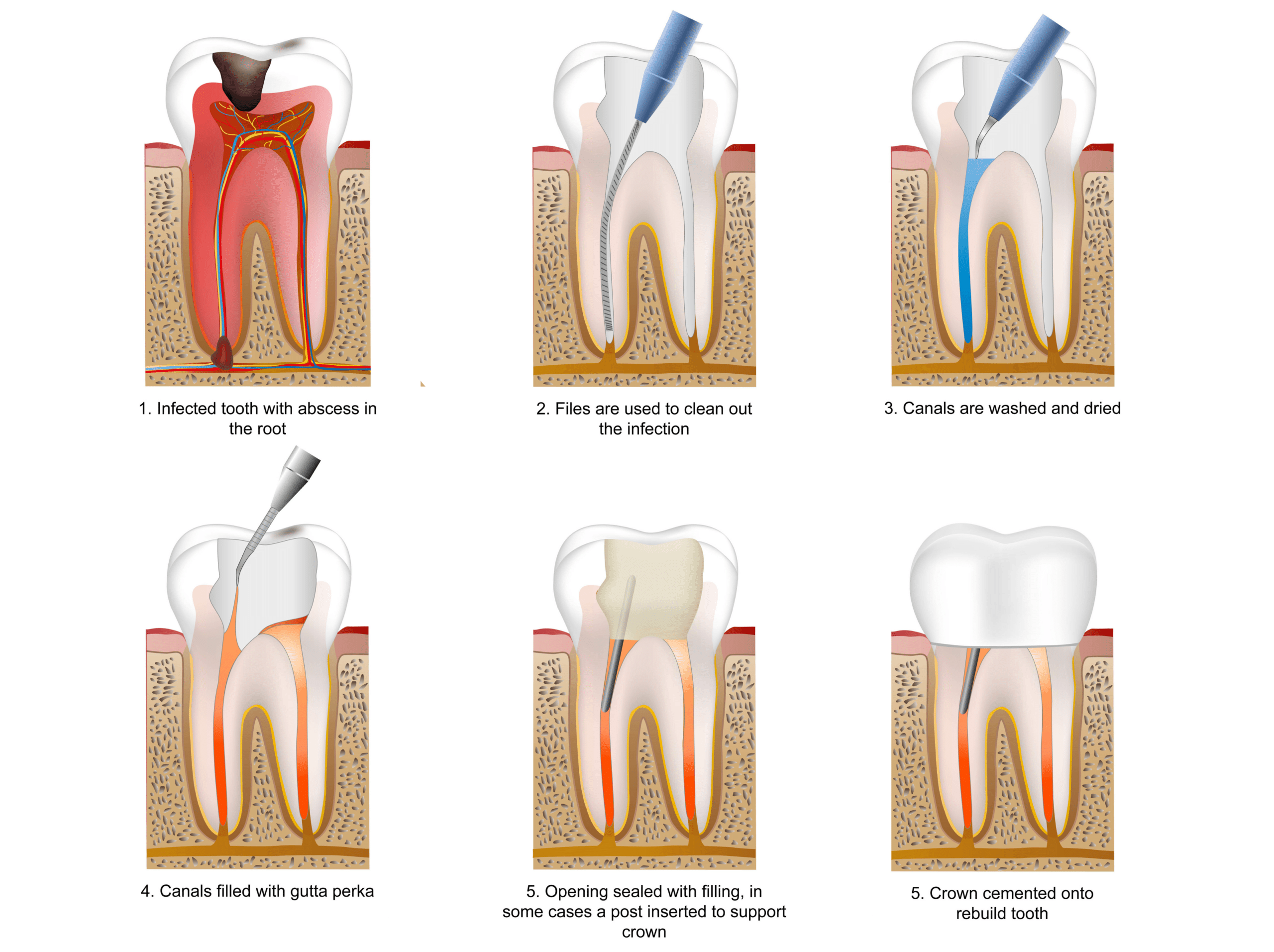 Root-Canal-treatment-hyderabad-dentist